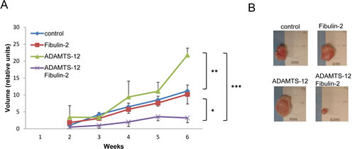 Presence of fibulin-2 and ADAMTS-12 inhibits growth of subcutaneous tumors.