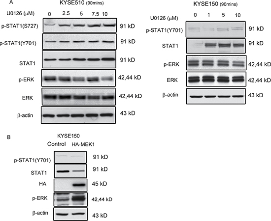 ERK mediated STAT1 expression in ESCC.