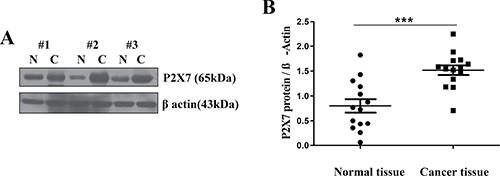 Over-expression of P2X7R in oral cancer tissue.