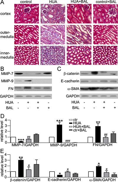 Effect of baicalein on fibrosis and EMT related proteins in mice.