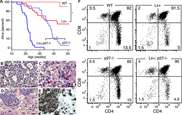 Cooperation with p27Kip1 loss in miR-106a~363 induced lymphomas.