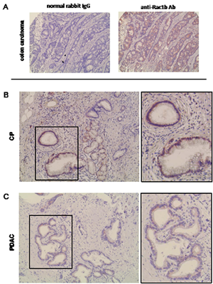 Immunohistochemical detection and quantification of Rac1b expression in CP and PDAC.