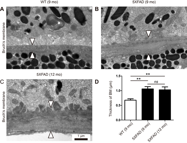 Thickening of Bruch's membrane in aged 5XFAD mice.