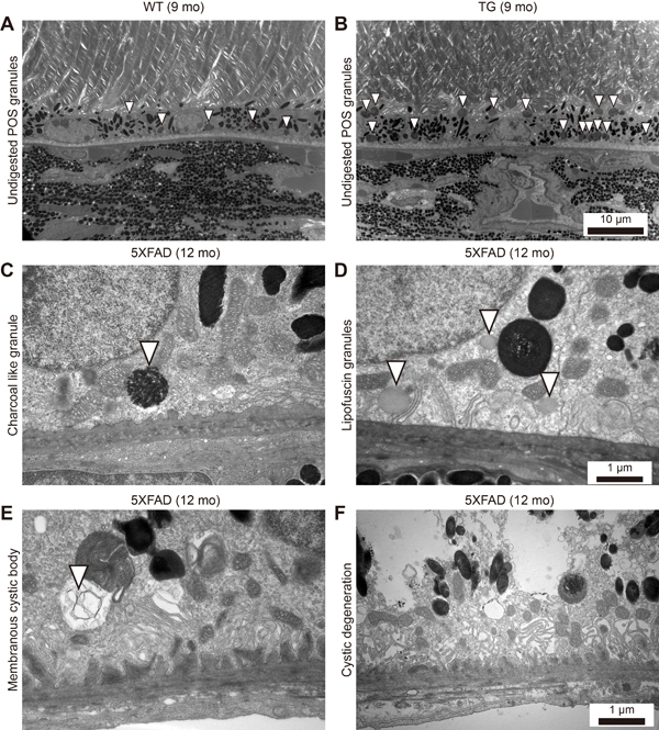 Increased number of intracellular granules of the RPE in aged 5XFAD mice.