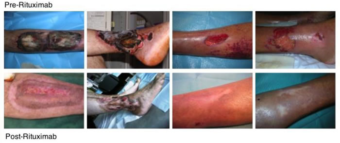 Skin ulcers healing after Rituximab treatment.