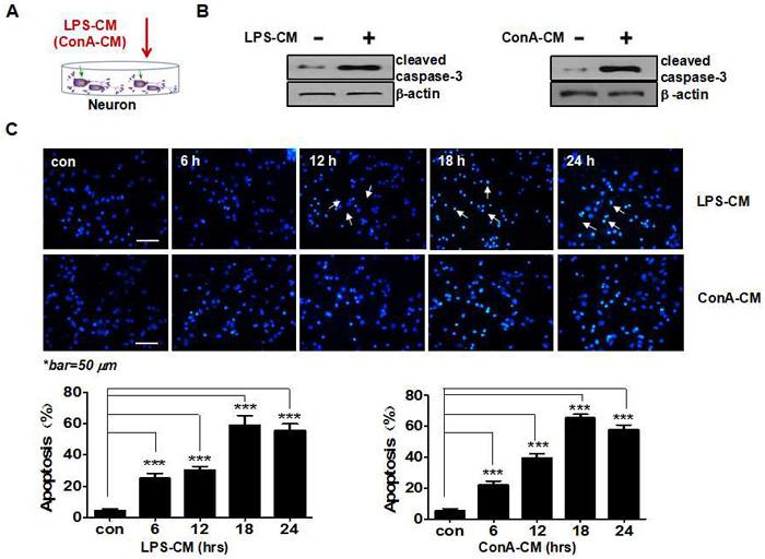 Acute inflammatory environment induces neuronal apoptosis.