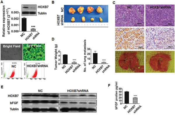 Down-regulation of HOXB7 suppress tumor growth and metastasis in vivo.