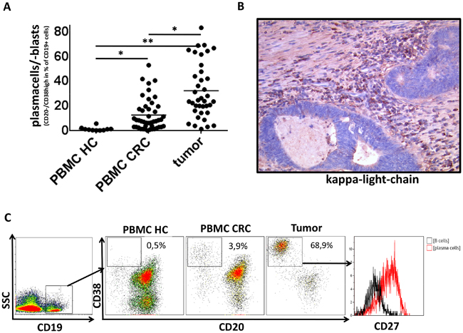 Plasma cells in PBMC and tumor samples of CRC patients and PBMC of healthy controls.