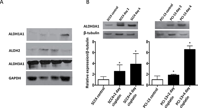 Cisplatin increases ALDH3A1 expression in HNSCC.