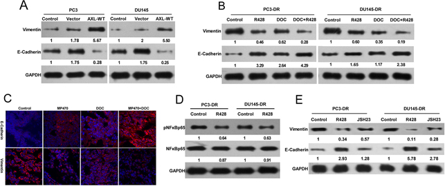 AXL-mediated docetaxel resistance is related to EMT phenotypes.