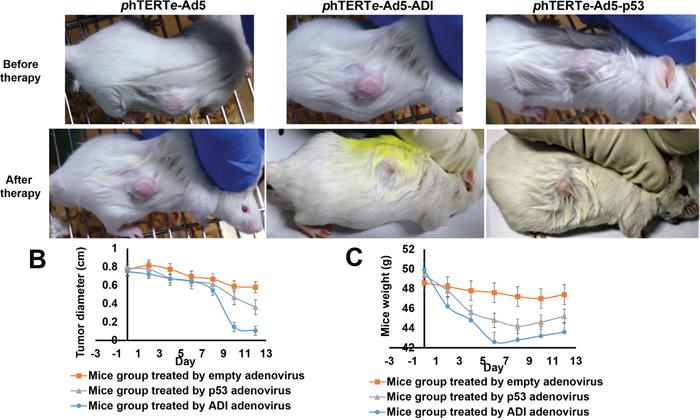 ADI adenovirus driven by phTERTe promoter successfully dissolved the tumors in mice hepatic tumor model.