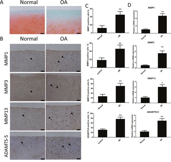 Safranin Orange staining and expression of catabolic proteases and extracellular matrix proteins in cartilage samples from human patients with or without osteoarthritis (OA).