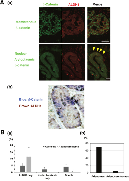 The co-expression of β-catenin and ALDH1 in non-ampullary adenomas and adenocarcinomas.