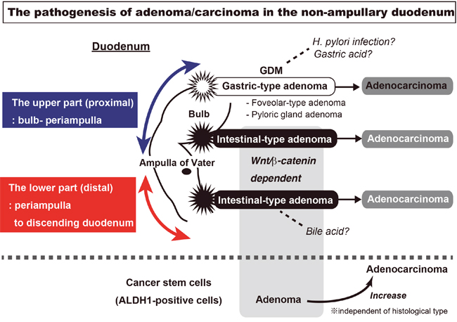 The visualization of sporadic adenoma and adenocarcinoma pathogenesis in the non-ampullary duodenum.