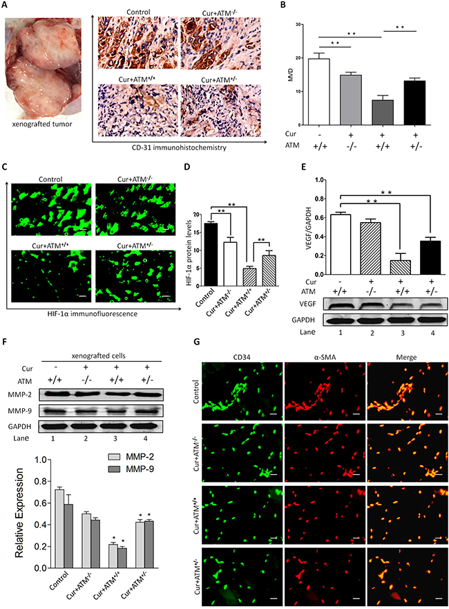 In vivo effects of CUR on HIF-1α expression and angiogenesis.