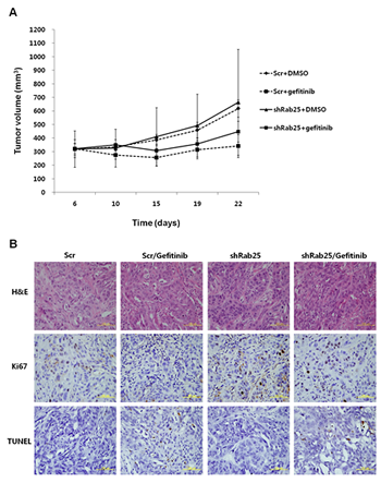 Evaluation of gefitinib response according to Rab25 expression status in a xenograft mouse model.