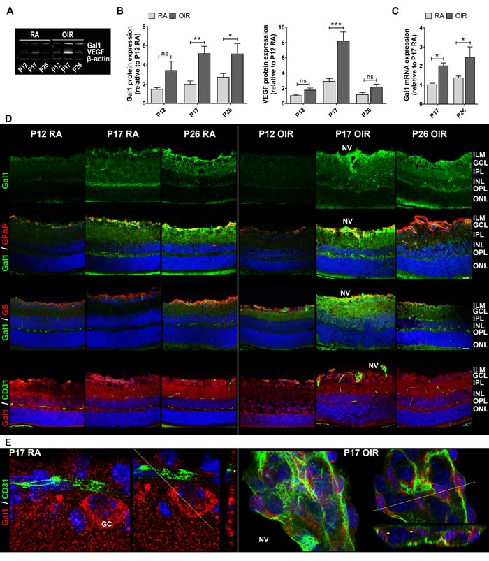 Gal1 expression and localization in RA and OIR mouse retinas.