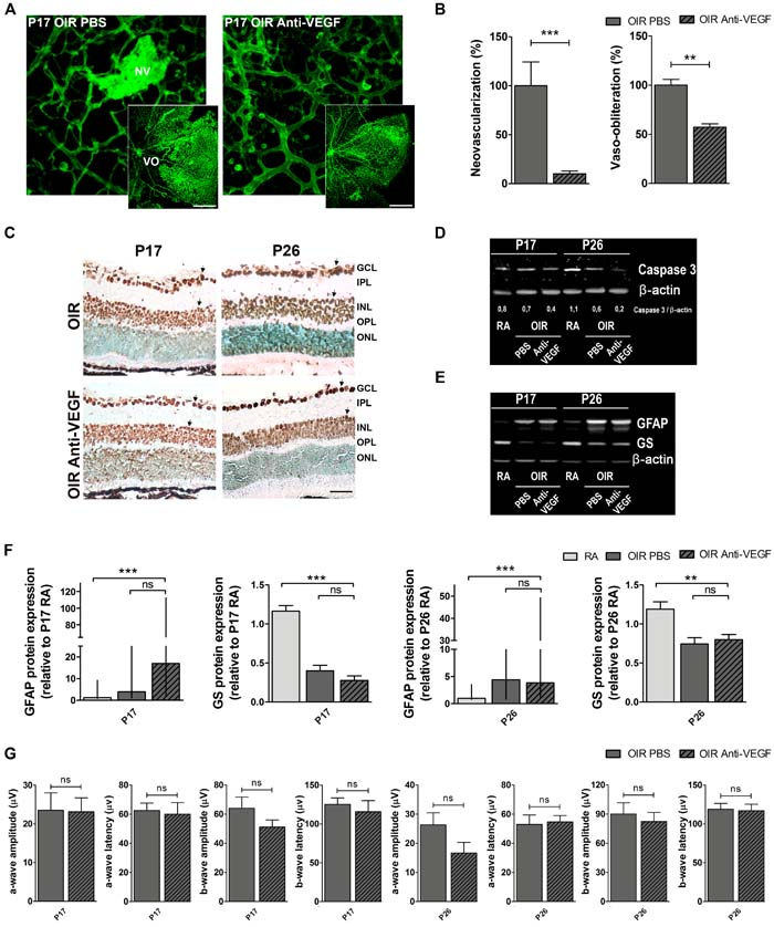 Impact of anti-VEGF treatment in the OIR mouse model.