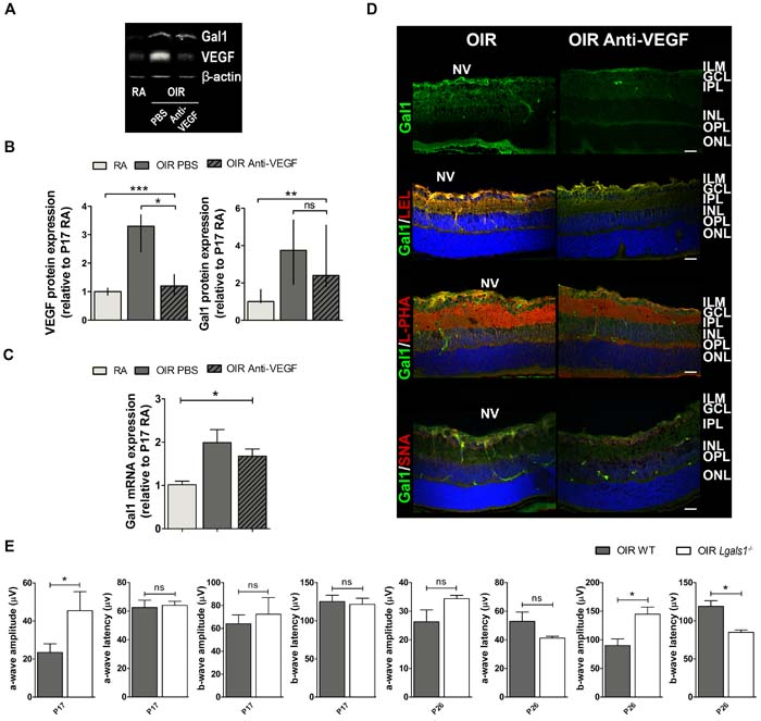 Gal1 expression and function as well as the glycophenotype of mouse OIR retinas after anti-VEGF therapy.