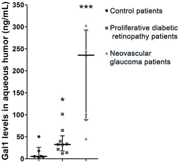 Relevance of Gal1 in human proliferative retinopathies of diabetic patients.