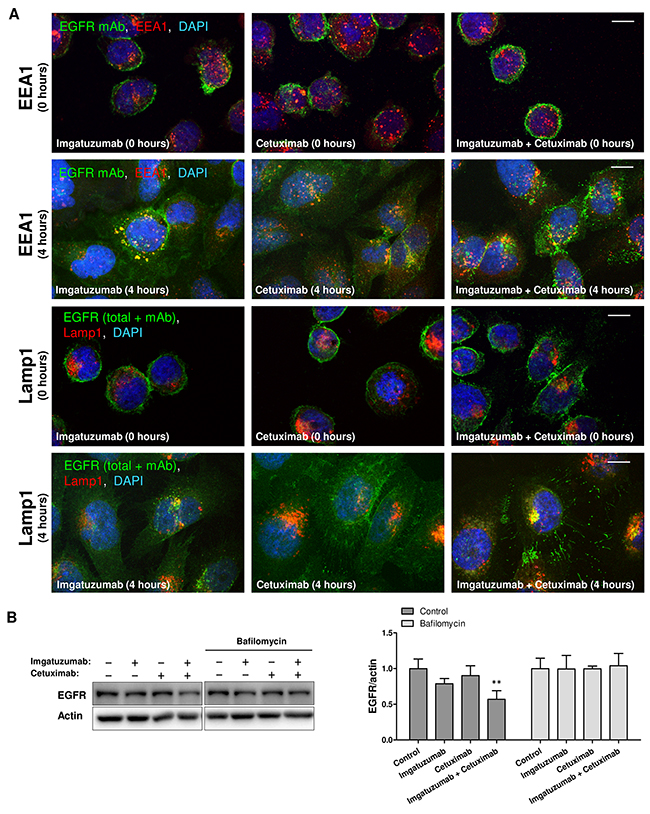 Cellular localization and endocytic trafficking of anti-EGFR monoclonal antibodies in SW-1573.