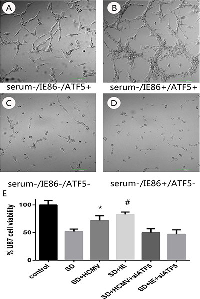 The effects of serum deprivation on survivability of U87 cells or RNAi-ATF5 U87 cells after HCMV infection or IE plasmids transfection.