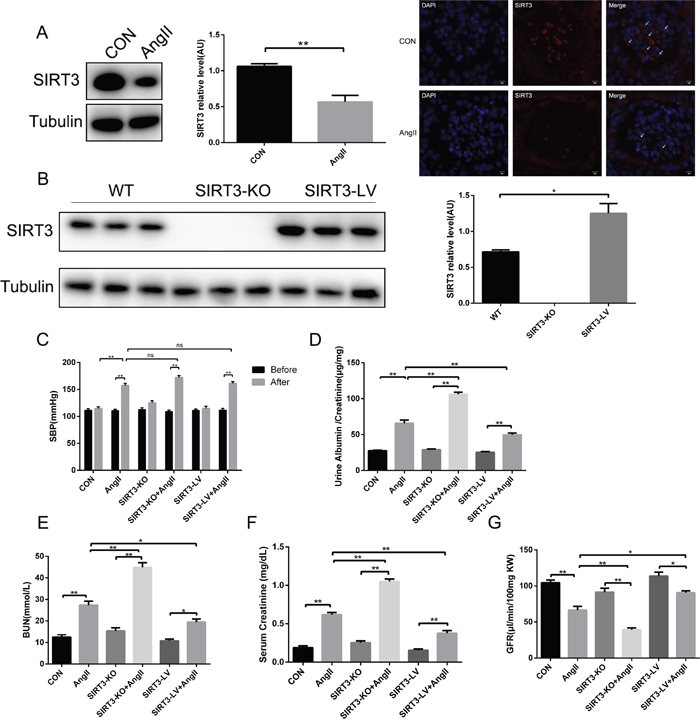 SIRT3 regulates renal function in hypertensive nephropathy.