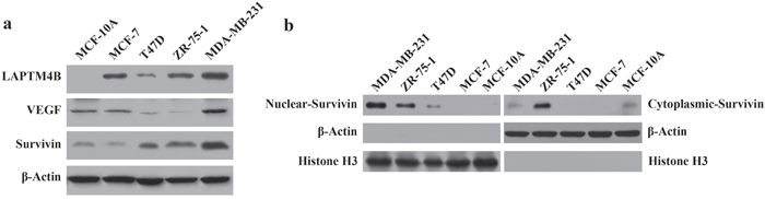 LAPTM4B, VEGF, nuclear and cytoplasmic survivin protein expression in breast cell lines by Western blot analysis.