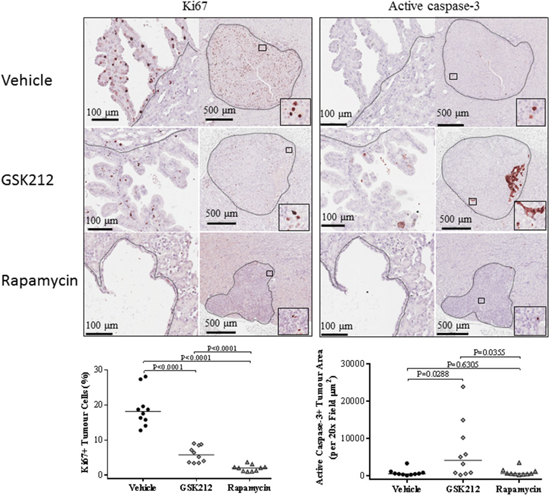 Effect of GSK2126458 and rapamycin on proliferation and apoptosis of renal tumour cells in Tsc2+/- mice.