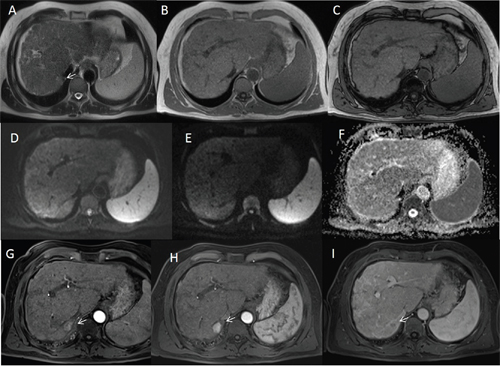 Man sixty-five years old with HCC on VII hepatic segment.
