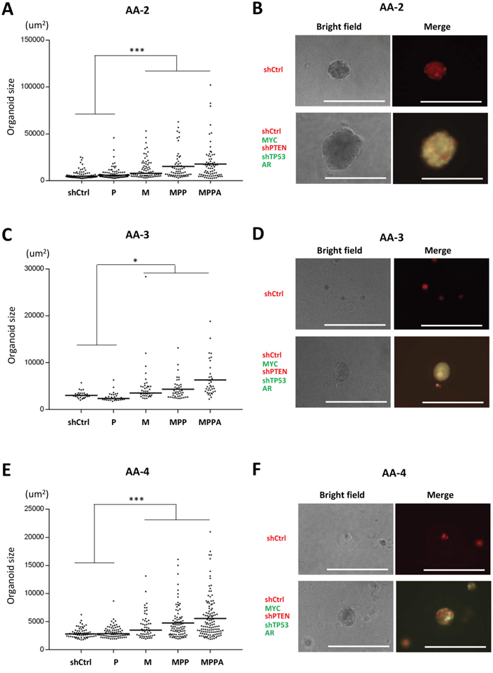 Engineered organoids derived from additional African American subjects AA-2, AA-3, and AA-4.