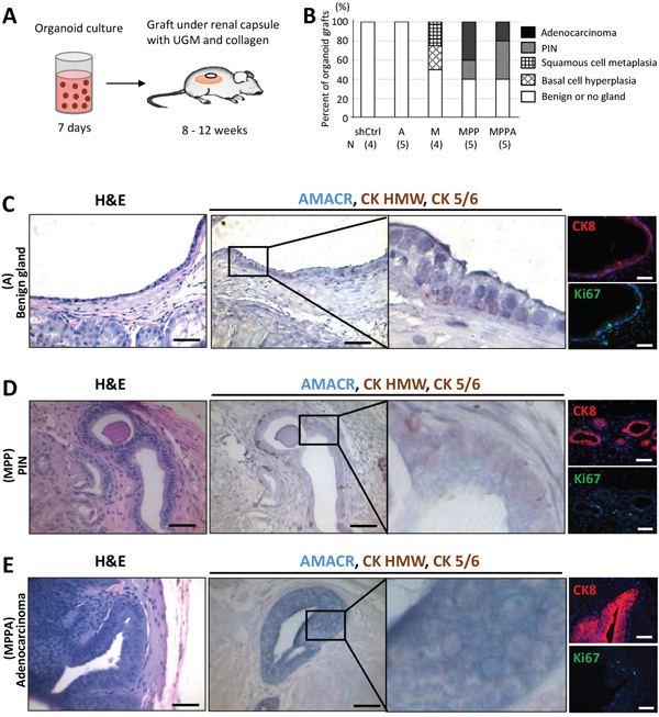 In vivo tumorigenicity of transformed organoids.