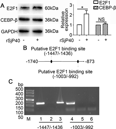 Transcription factor E2F1 binds to the -1740/-873 activity region of the p27 promoter.
