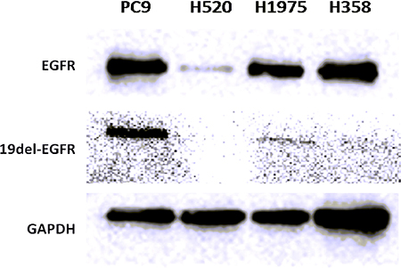 Western blot of EGFR and 19del-EGFR expression level in 4 NSCLC tumors.