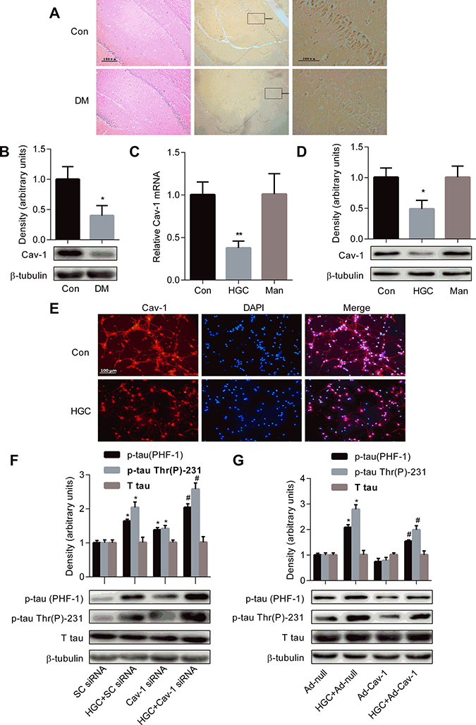 Decreased Cav-1 expression contributes to the formation of tau hyperphosphorylation under hyperglycemic condition.