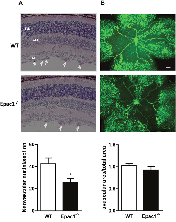 Retinae of Epac1-/- mice are protected from oxygen-induced vascular damage.