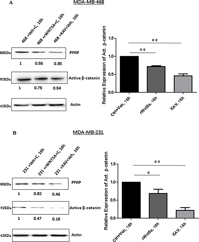 Inhibition of β-catenin results in reduced expression of PFKP in breast cancer cells.