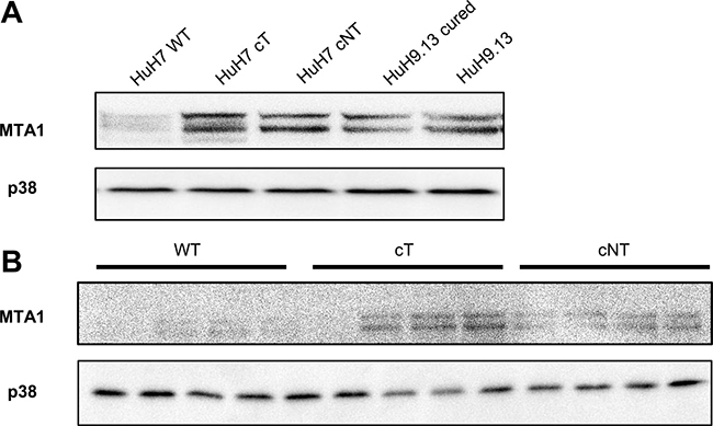 HCV core induces the expression of MTA1, a 4E-BP1 downstream target.