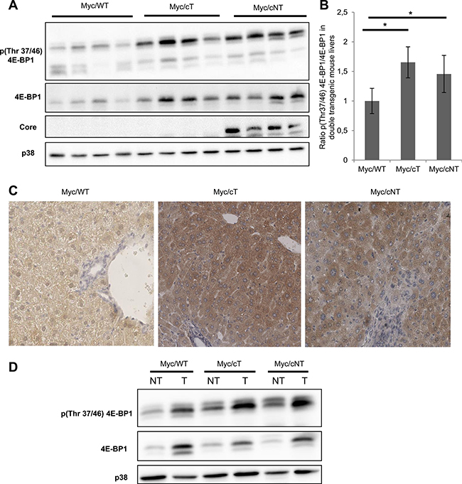 HCV core increases 4E-BP1 phosphorylation level in Myc/cT and Myc/cNT mouse livers.