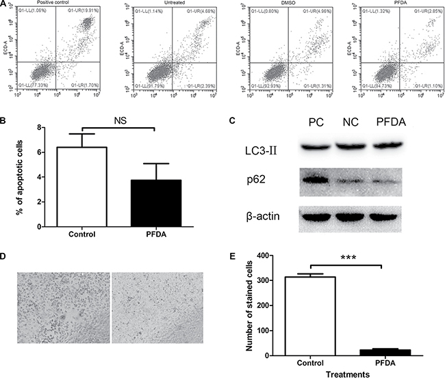 PFDA treatment suppressed senescence of gastric epithelial cells.