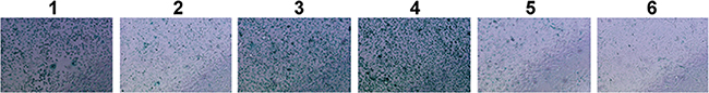 SA-β-gal activity assessment of PFDA treated and transfected AGS cells.