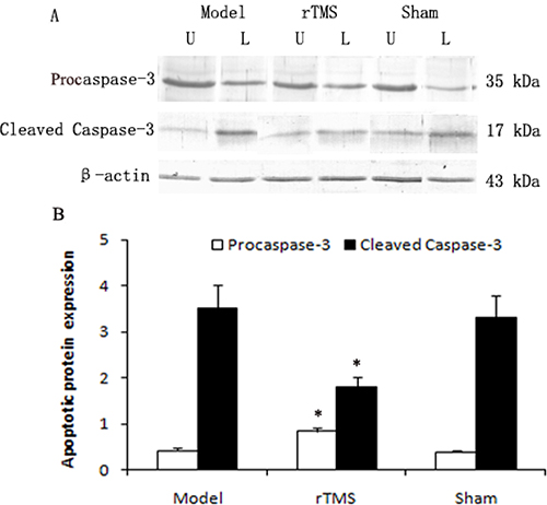 Effects of repetitive transcranial magnetic stimulation (rTMS) treatment on the expression of procaspase-3 and cleaved caspase-3 in the substantia nigra of the rats induced by lactacystin.