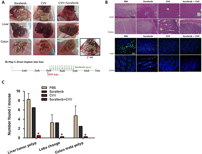 CVV induced complete regression of liver tumorigenicity and metastasis to colon.