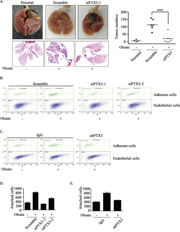 Oleate-induced autocrine production of PTX3 enhances tumor metastasis.