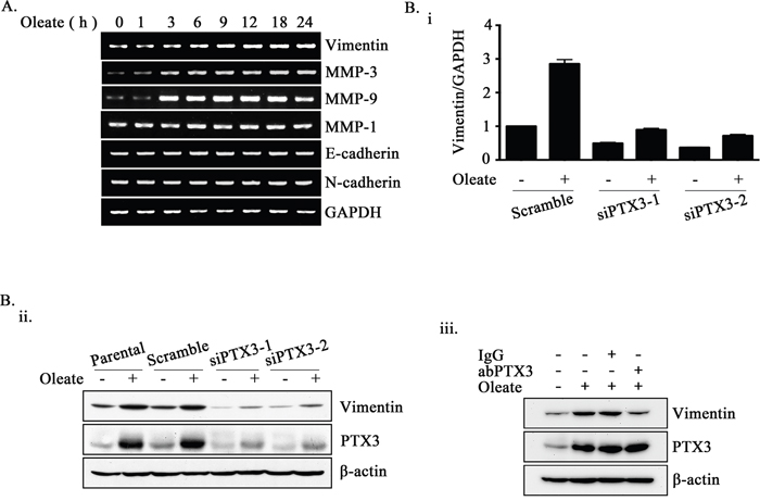 Oleate-induced PTX3 regulates the expression of vimentin.