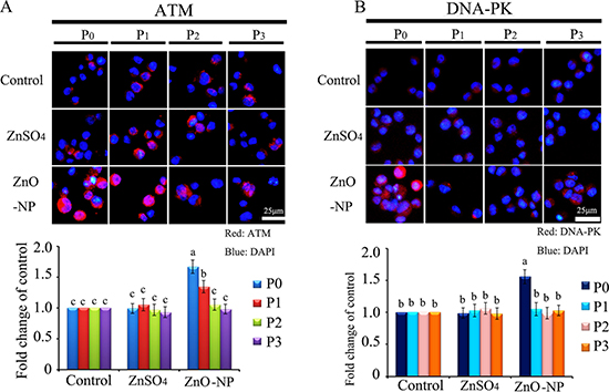 IHF images for ATM and DNA-PK in ZnO NPs treated CHO-K1 cells.