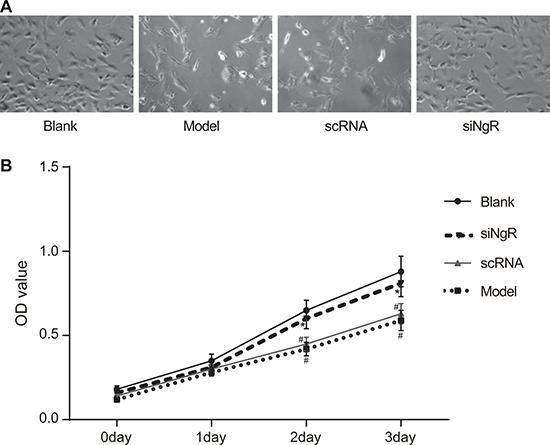 NgR gene silencing promotes proliferation of NMDA-treated mRGCs.