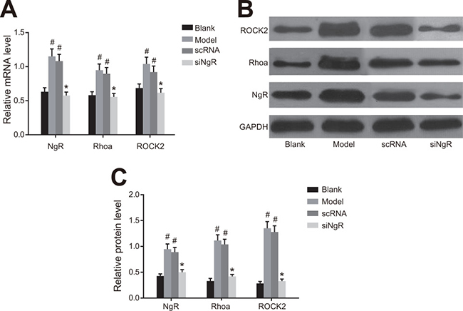 The effect of NgR silencing on RhoA signaling pathway in NMDA-treated mRGCs.