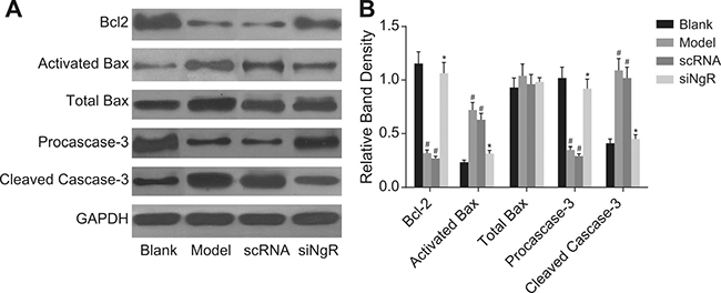 The effect of NgR silencing on expression of apoptosis-related proteins in NMDA-treated mRGCs.