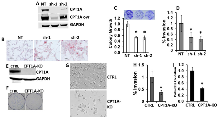 CPT1A is needed to maintain viability and invasion of prostate cancer cell lines.